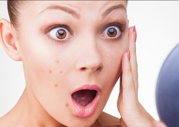 How to Take Control of yourAcne