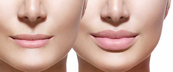Let's Talk About Lips: How to Plump that Pout